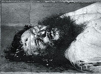 World War 1 Picture - Post-mortem photograph of Rasputin showing the bullet hole in his forehead