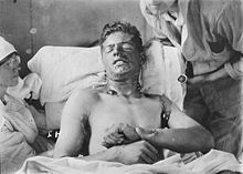 World War 1 Picture - A Canadian soldier with mustard gas burns, ca. 1917-1918.