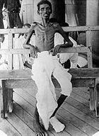 This photograph shows an emaciated Indian army soldier who survived the Siege of Kut